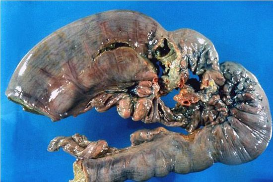 efekti želuca adenokarcinoma