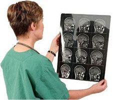 Spôsoby liečby adenómu hypofýzy