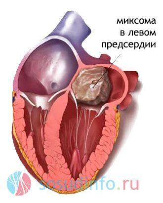 cianoză cu tetralogie Fallot