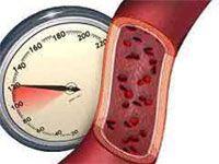 Zvýšený krvný tlak a hypertenzia