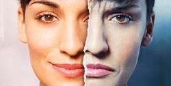 Autoimunitní onemocnění, které poškozují zdraví pokožky