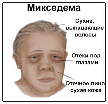 Symptómy Image myxedema