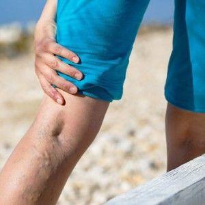 Bolesť v žilách: príčiny, kvôli chorobe, než nebezpečné, ako na liečbu, prevenciu