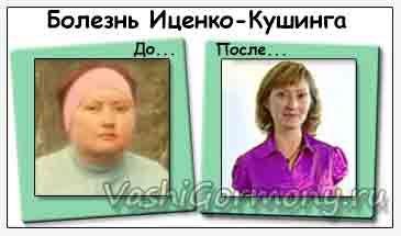 Bolezn-icenko-Kushinga-do-i-posle