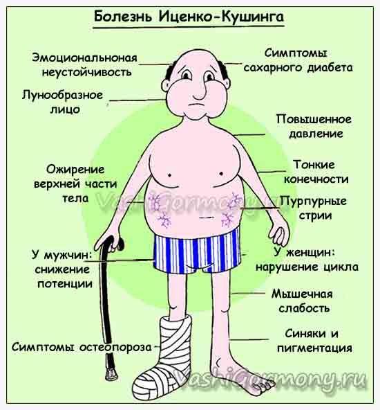 Obrázok s príznakmi Cushingovho choroba