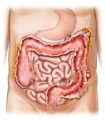 Struck presjeka crijeva
