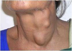 Sprawl u vratu