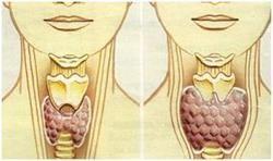 Nehomogenní struktura štítné žlázy