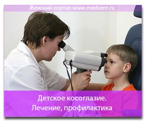 Dječji strabizam. Liječenje, sprječavanje