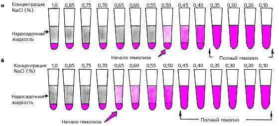 Hemolýza: podstata, typy, fyziologické a patologické, akutní a chronické