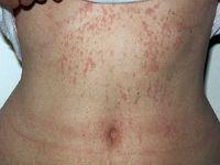 erupție hemoragică pe stomac