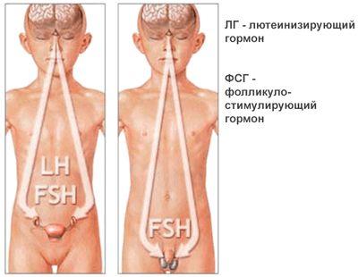 hipogonadism hipogonadotropic