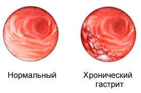 Kronični gastritis: Simptomi i liječenje