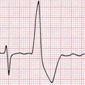Arytmie (extrasystola): příčiny, příznaky a symptomy, léčba, prognóza