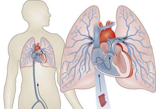 embolism pulmonar