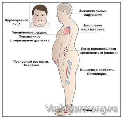 Obrázok graf znázorňujúci príznaky Cushing