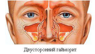 Ako a čím správne liečiť zápal prínosových dutín?