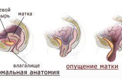 Vožnja materničnega vratu prolaps