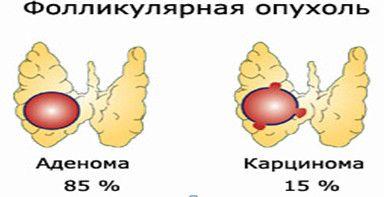 folikulární nádor