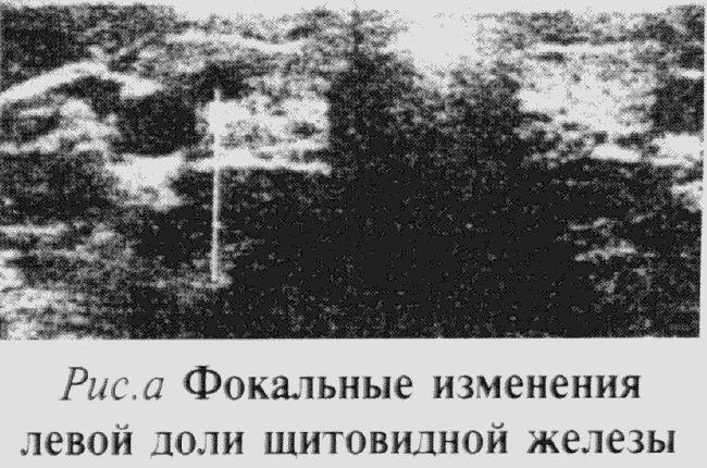 Štitnjače ultrazvukom prijepis
