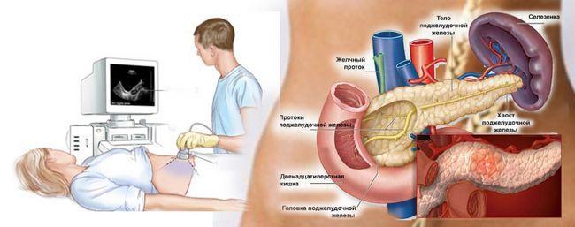 Diagnostika-pankreatita