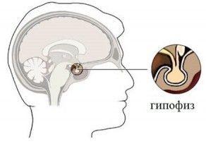 Pituitară și chist pituitară