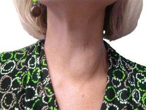 Chist în glanda tiroidă
