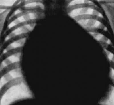 Srdeční choroby na RTG nálezem