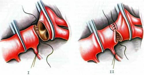 Operace aortální chlopně