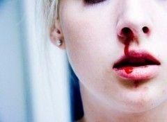 Krvácející