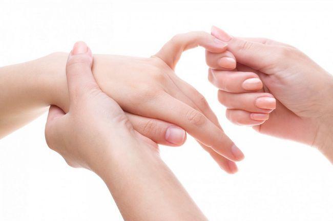 Tretiranje artritisa ruku