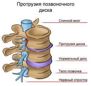 Vertebralna protruzije diska