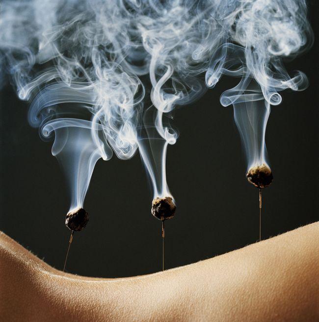 Moksoterapiya s akupunktura