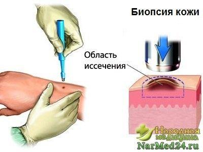 biopsie de piele va ajuta la a face diagnosticul corect al ihtioza