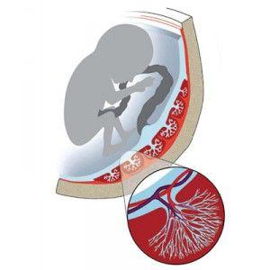 Zhoršená průtok krve v děložních tepen, pupeční šňůru, placenty v průběhu těhotenství (nmpk)