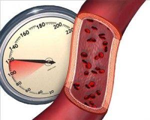 niži liječenje krvni tlak