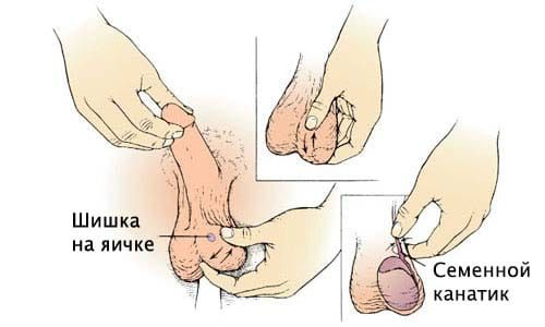 Apariția umflaturi pe testiculului