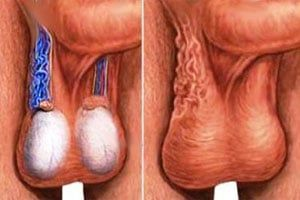 varicocel testicular
