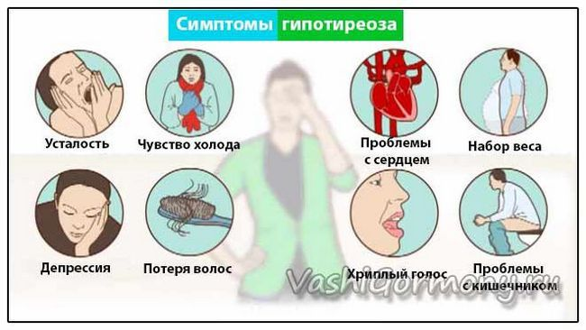 Obrázek diagram příznaky onemocnění štítné žlázy se sníženou funkcí