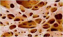 koštano tkivo