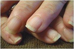 stare proastă de unghii