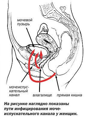 Prodor infekcije u mjehura kod žena