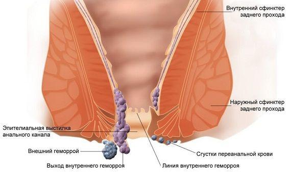První známky mluvit o hemoroidy
