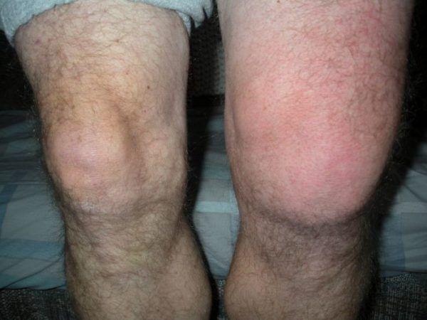 Opuch kolenného kĺbu