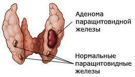 zvýšená parathormon