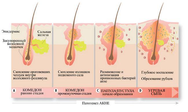 razvoj akni