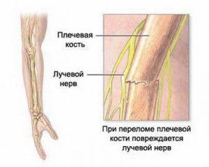 leziuni ale nervilor