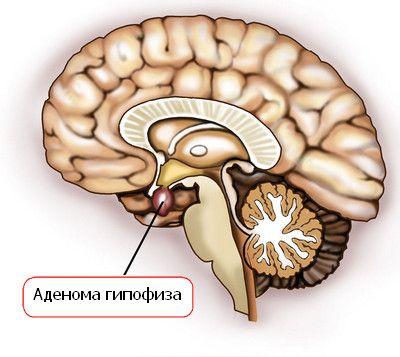 Adenom pituitar și simptomele ei