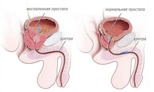 vospalenie prostaty
