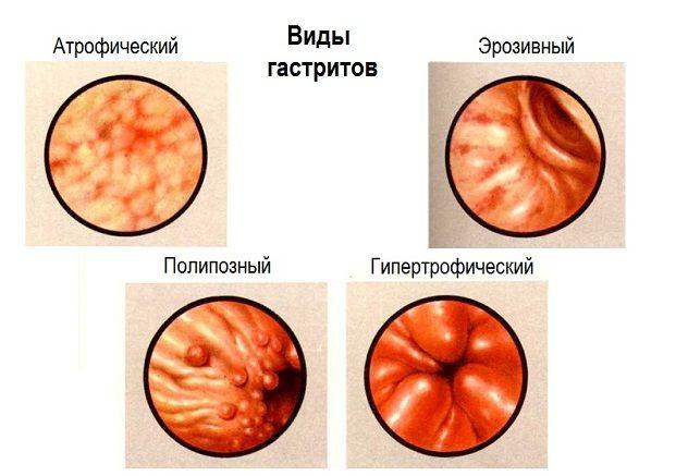Základem komplexní terapie - strava s chronickou gastritidu